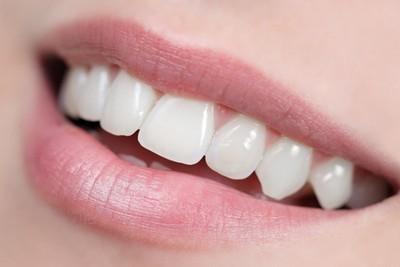 Zahnzusatzversicherung zahlt die professionelle Zahnreinigung